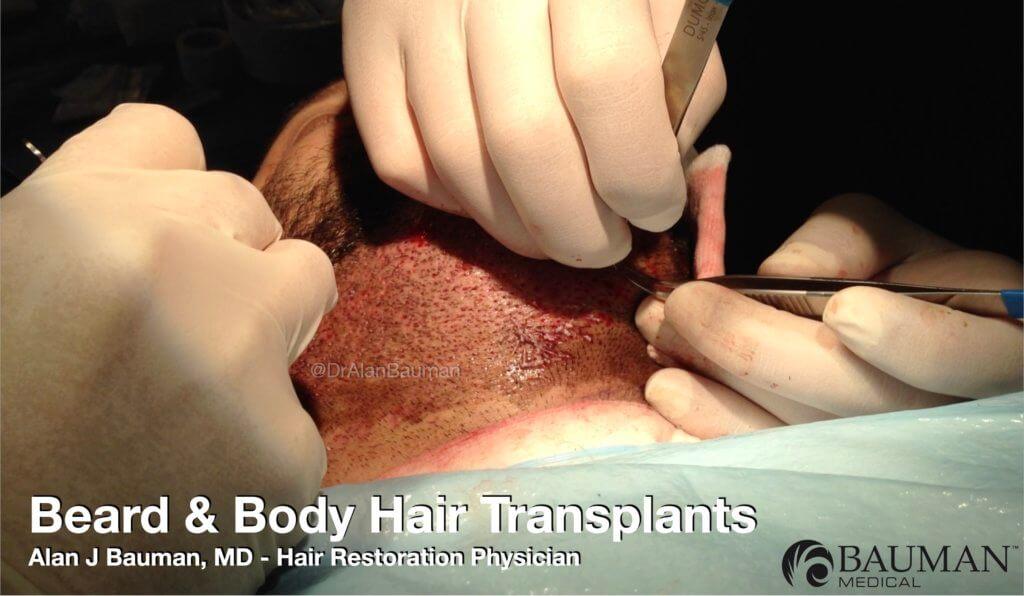 Beard Hair Transplant Donor Harvest FUE DrAlanBauman 1024x596 BHT Beard & Body Hair Transplants Using FUE