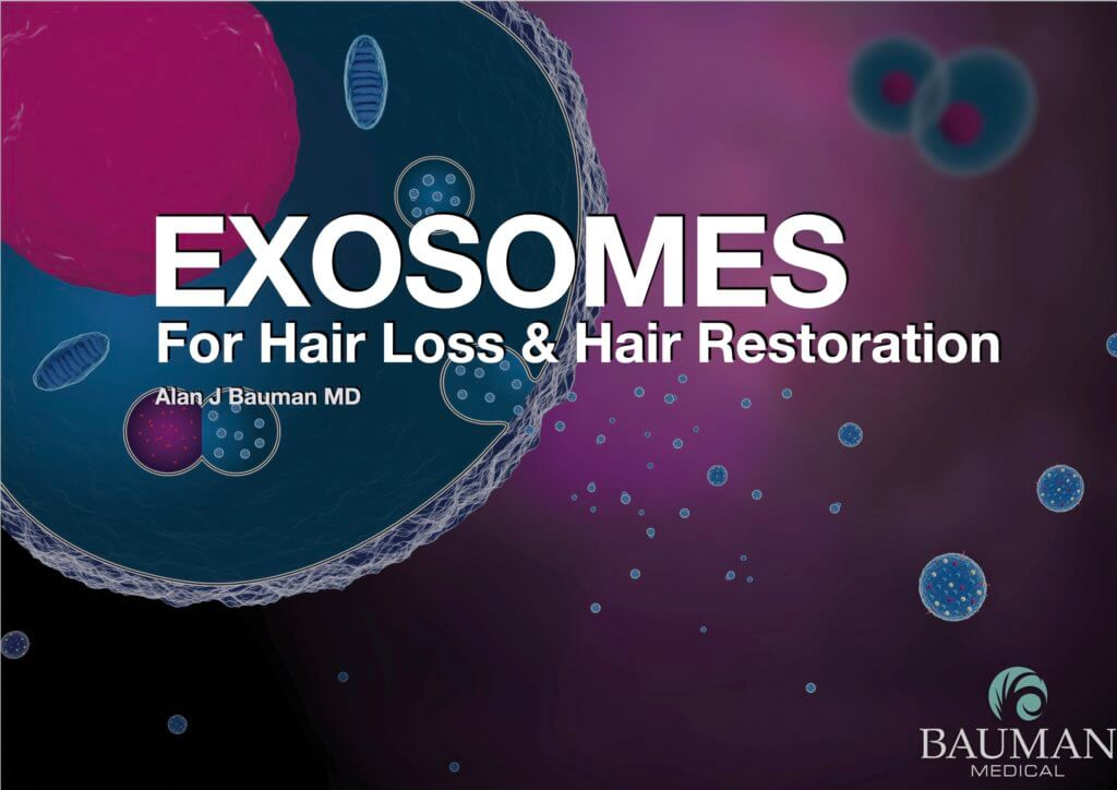 exosomes hair loss restoration DrAlanBauman 1024x724 Exosomes for Hair Loss & Hair Restoration