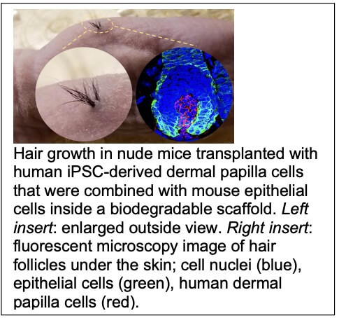 Screen Shot 2021 02 25 at 9.17.06 AM Regenerative Medicine in Hair Restoration