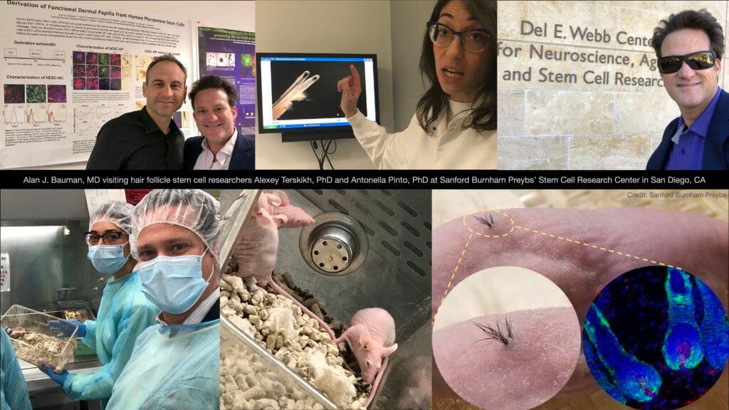 Stem Cell Hair Follicle Research IPSC Alexey Terskikh Dr Alan Bauman 1024x576 Regenerative Medicine in Hair Restoration