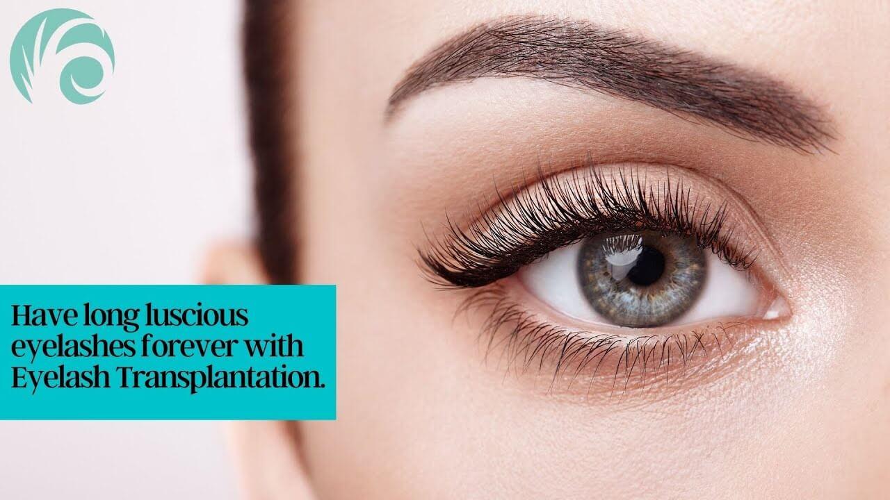 eyelash transplant and implant p Eyelash Transplant and Implant Procedure