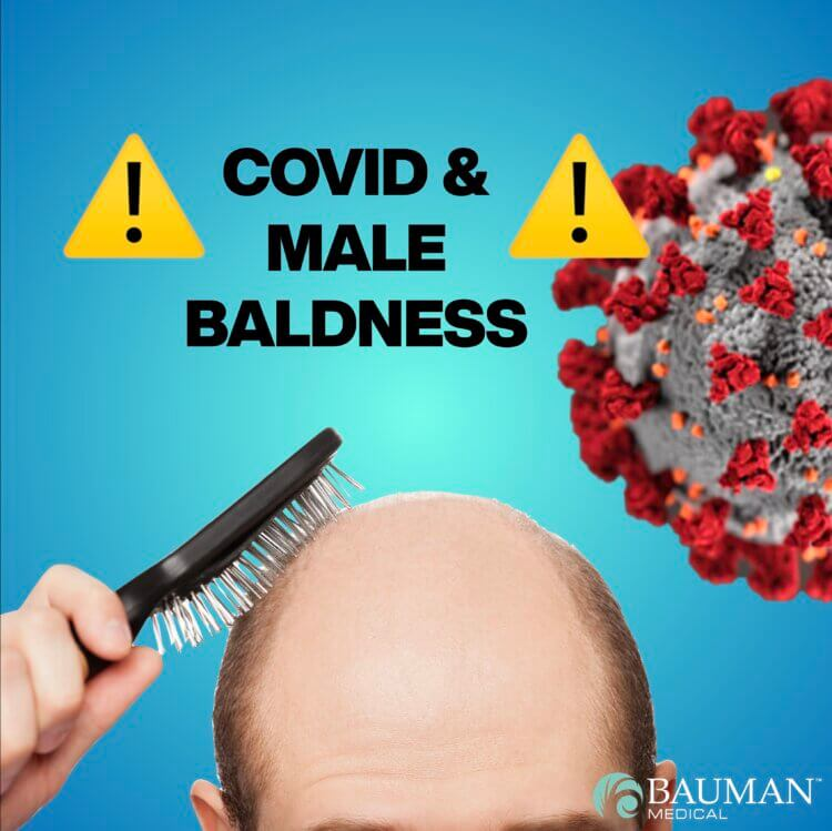 Are Bald Men More Likely To Suffer Severe COVID?